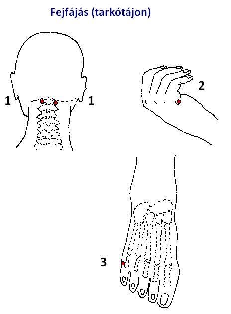 akupunktúrás pontok a magas vérnyomás ellen magas vérnyomás kezelés mészáros