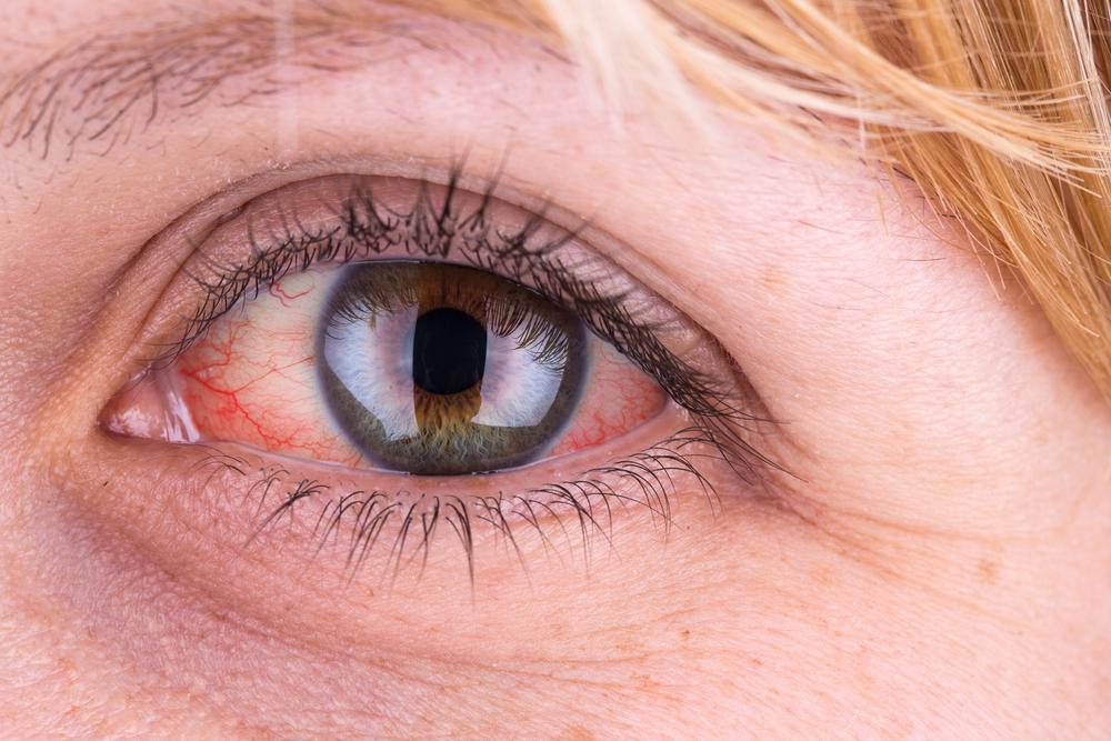 vérzés a szem magas vérnyomásában