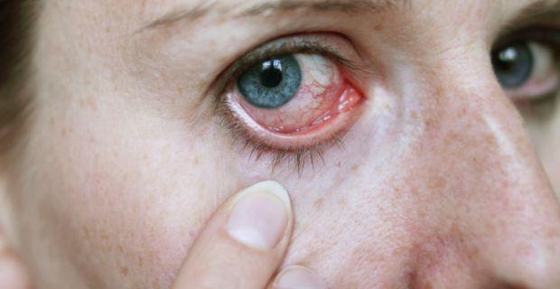 a magas vérnyomás cikázik a szemekben tesztek a magas vérnyomásról válaszokkal