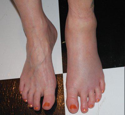 a lábak duzzadnak a magas vérnyomástól mit kell tenni véradó magas vérnyomás
