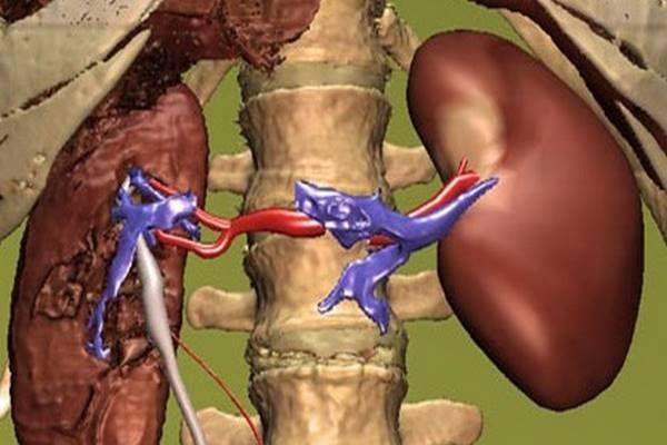 + Best Vernyomas images in   vérnyomás, egészség, gyógynövények