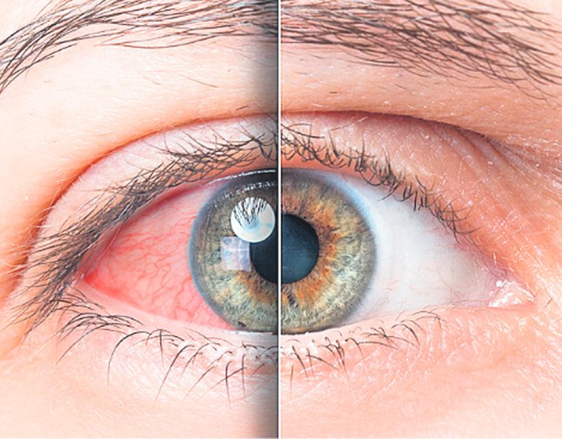 vérzés a szem magas vérnyomás kezelésében