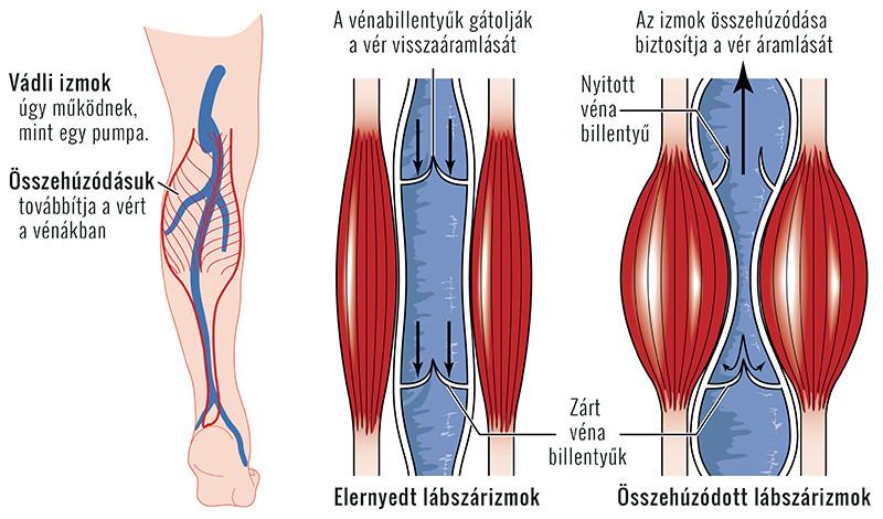 kézi vénák magas vérnyomás terápiás torna nyakra magas vérnyomás esetén