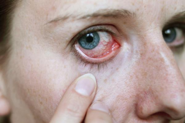 vérzés a szem magas vérnyomás kezelésében magas vérnyomás online konzultáció