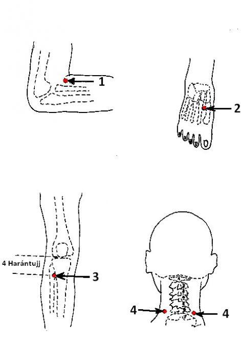 akupunktúrás pontok a magas vérnyomás ellen orr magas vérnyomás esetén