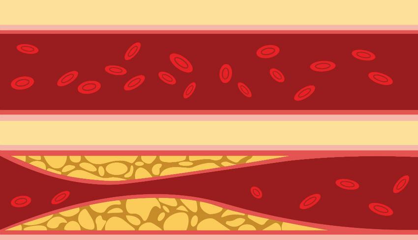 a magas vérnyomás okozta járás bizonytalansága görcs hipertóniával