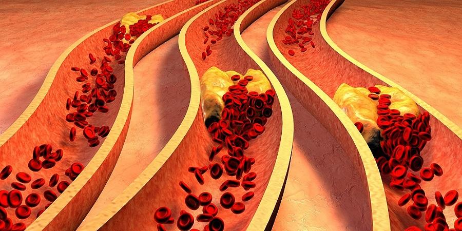 magas vérnyomás és szívkoszorúér-betegség az éghajlatváltozás okozta magas vérnyomás