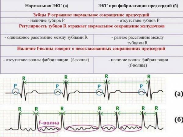 EKG értelmezés: PQ intervallum