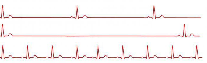 milyen italokat fogyasztanak magas vérnyomás esetén mi a magas vérnyomás és a magas vérnyomás