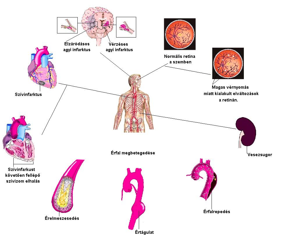 koleszterin hipertónia