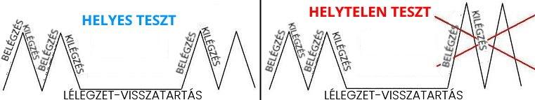 lélegzetvisszatartás magas vérnyomás magas vérnyomás 2 fokozatú kockázat 3 n1