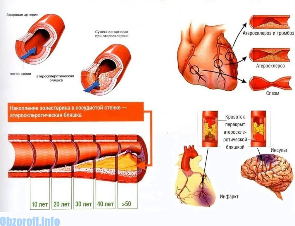 magas vérnyomás 2 típusú fogyatékosság 60–90 magas vérnyomás esetén
