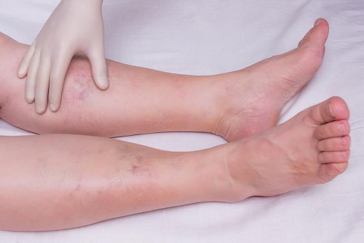 magas vérnyomás a lábak duzzanata