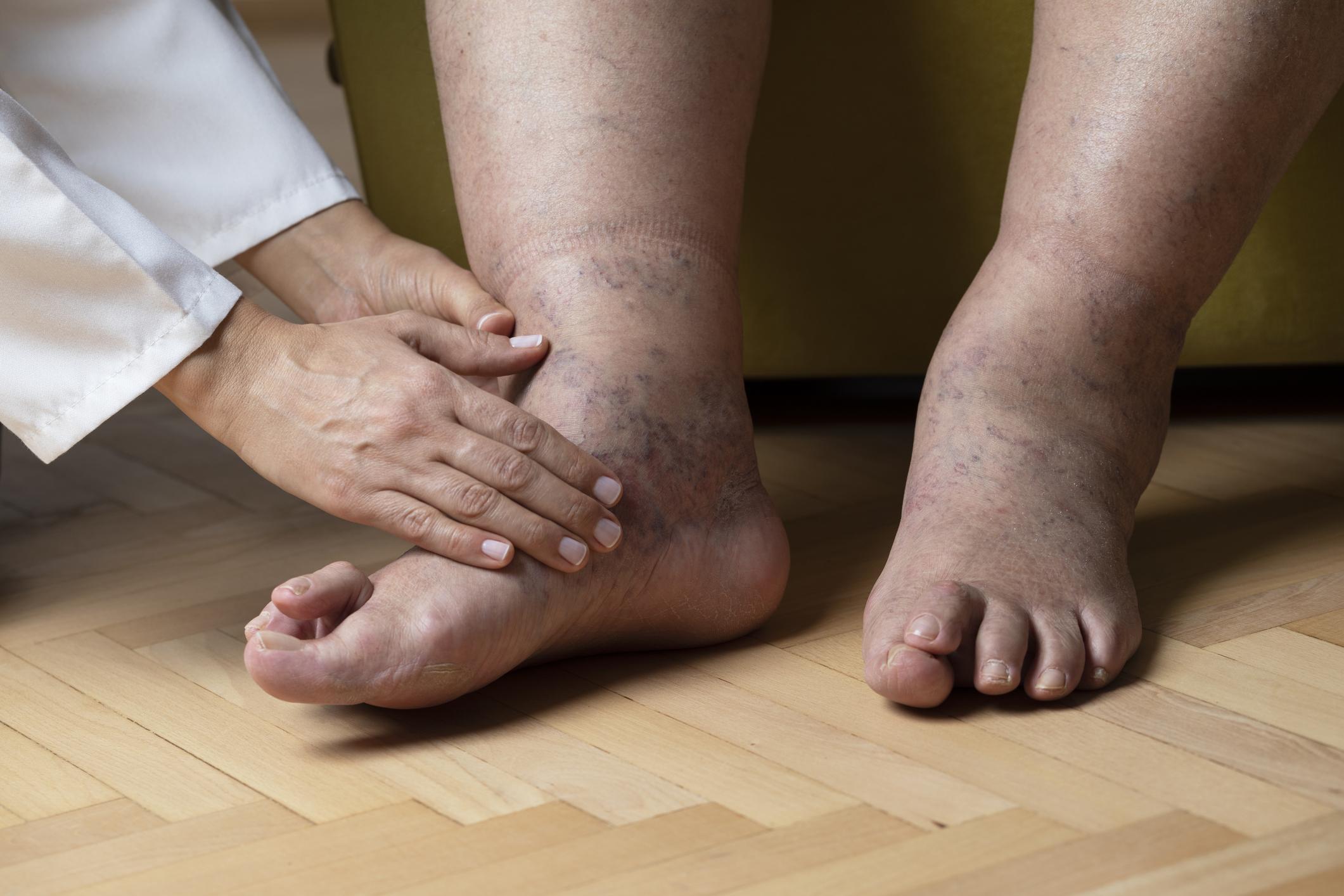 magas vérnyomás duzzadt lábak