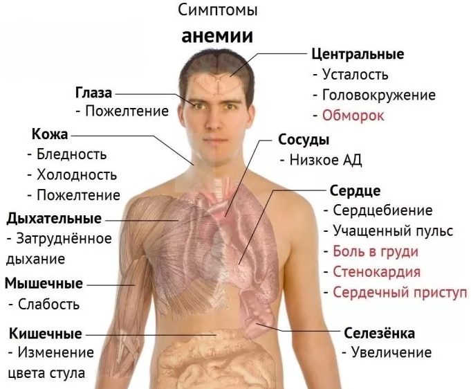 A vérszegénység súlyos tünetekkel járhat!