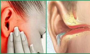 Fejfájás, migrén, zaj a fejben, a fülekben. A szabadulás okai és módszerei - Klinikák -