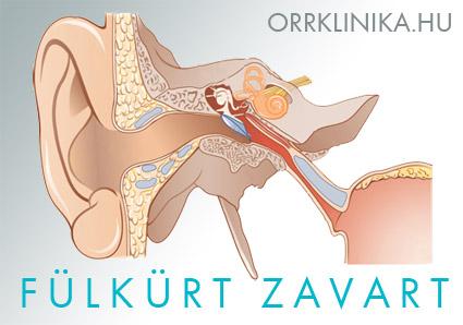 magas vérnyomás török nyereg