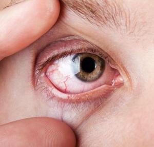 vérzés a szem magas vérnyomás kezelésében magas vérnyomás és todicamp